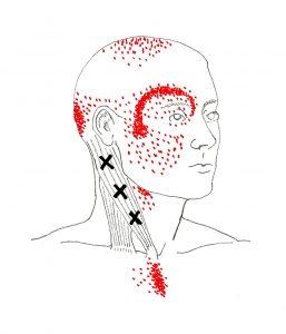 Triggerpunkt-Therapie Kopf